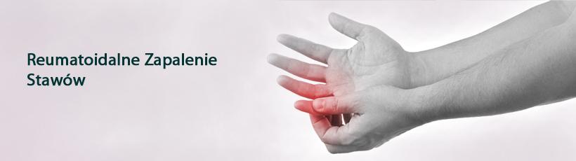 https://badaniakliniczne.angelius.pl/wp-content/uploads/Reumatoidalne-Zapalenie-Stawów2.jpg